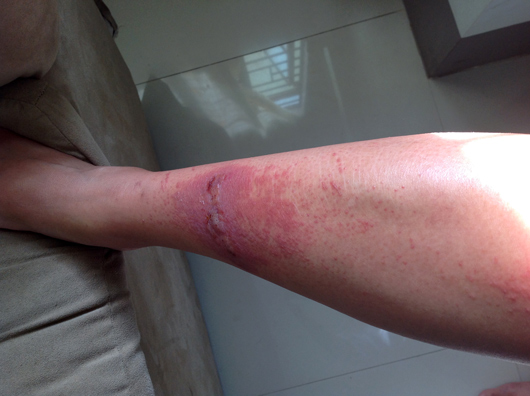 Nasty blistering rash from walking through grass.